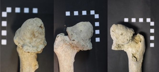 Coxa magna and severe osteoarthrosis in an adult from the Bronze Age