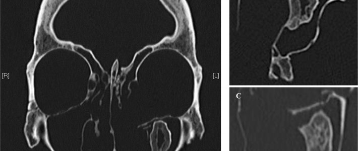 Osseous mass in a maxillary sinus of an adult male from the 16th–17th-century